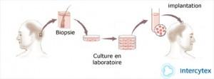 clonage